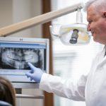 10_Už po prvním ztraceném zubu má lékař pacientovi nabídnout implatnát_foto Klinika GHC Praha_repro zdarma